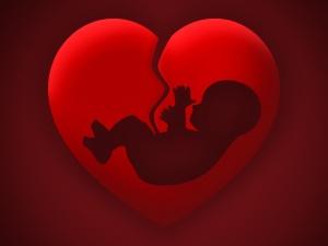 Etats Unis: un gynécologue pratique des IVG illégales pour être poursuivi