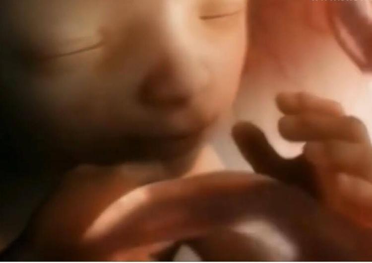 """""""Jest to sprawa ponadpartyjna"""". Wniosek ws. aborcji eugenicznej ponownie trafi do TK"""